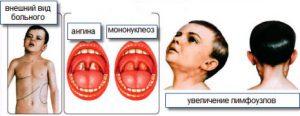 Характерное недомогание, ощущение озноба, снижение аппетита, воспаляется слизистая глотки (ангина), увеличение лимфоузлов
