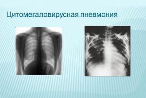 Цитомегаловирусная пневмония
