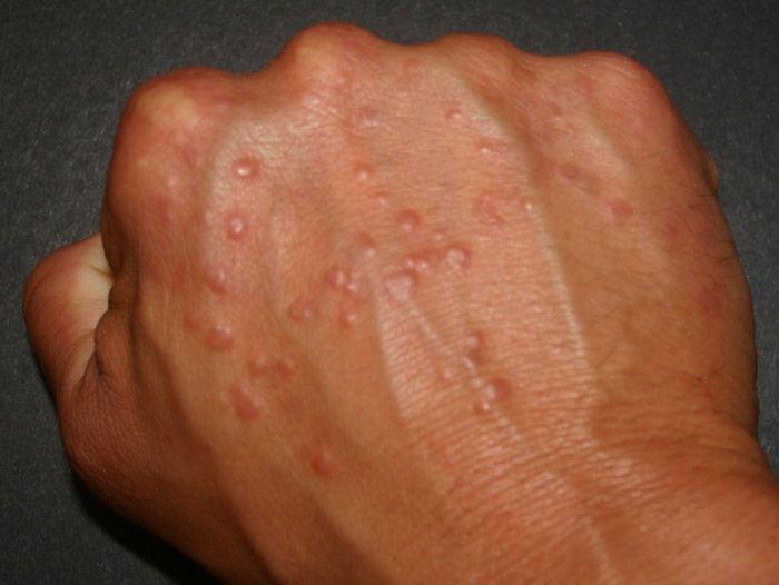аллергия на грибок плесени
