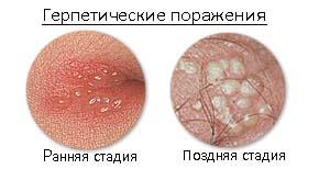 герпес генитальный при беременности фото