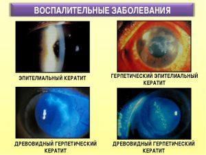 Классификация герпетического кератита