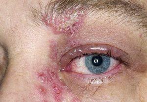 На веках и возле глаз может проявится папулезная сыпь