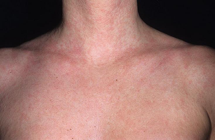 отличия герпеса от аллергии