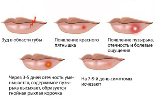 Если выскочила простуда на губе что делать