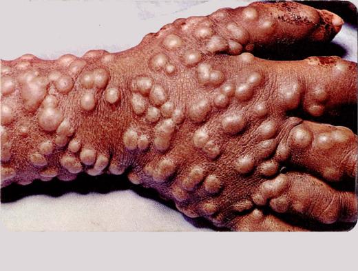 Уничтожение штаммов натуральной оспы