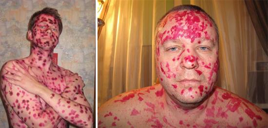 сыпь у взрослых фото симптомы и лечение у взрослых